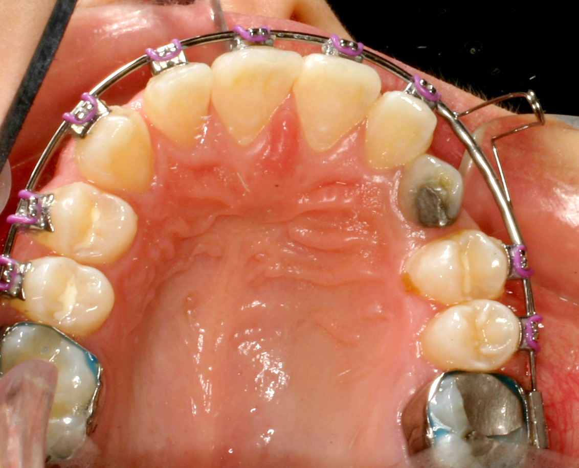 Fig._6c._occlusal_pre_surg_9590